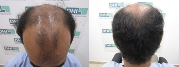 Hair Transplant of 7,000 Hairs in 7 hours only!
