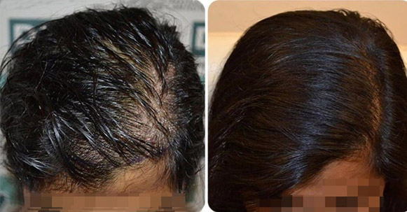 Natural, fair density result from a female hair transplant case